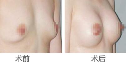 93%存活率新微度自体脂肪丰胸