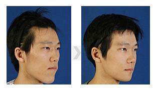 下颚前突矫正手术