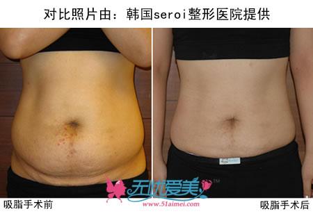 腰腹吸脂对比图