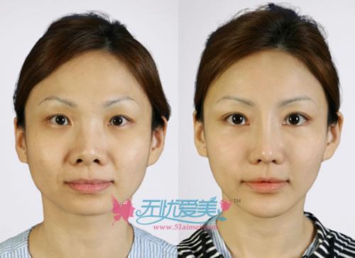 开内眼角、 鼻子整形、下巴整形对比案例