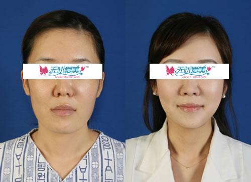 面部轮廓整形整形对比案例