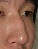驼峰鼻矫正手术对比照片