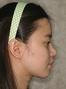 韩式隆鼻手术案例对比照片