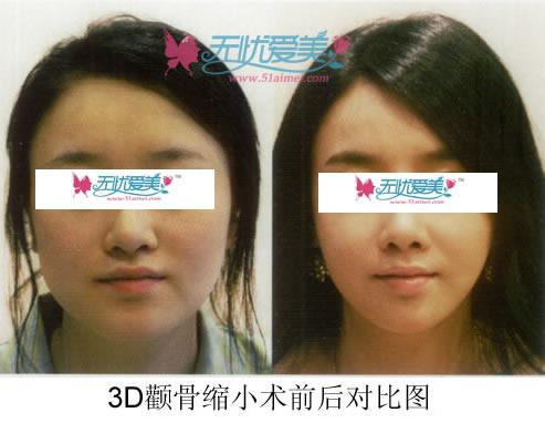 3D颧骨缩小术