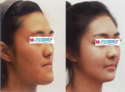 双颚手术前后对比图