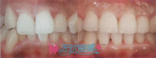 牙齿矫正前后对比案例