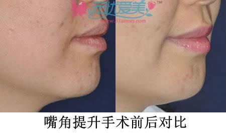 嘴角提升手术前后对比