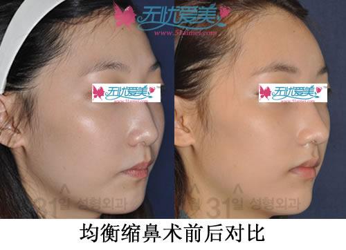 均衡缩鼻术前后对比案例