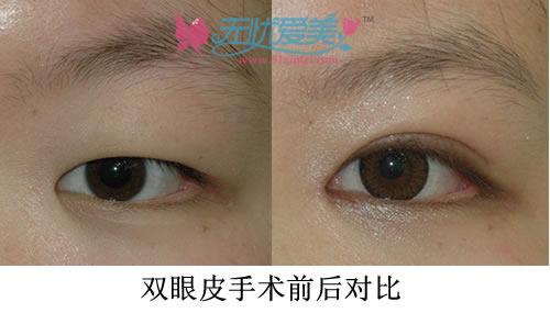 双眼皮手术对比案例