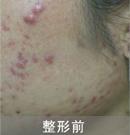 激光祛痘对比案例