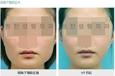 面部下颌角整形对比案例