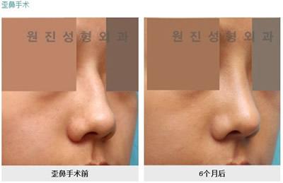 歪鼻矫正手术对比案例