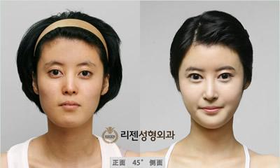面部轮廓整形手术对比案例