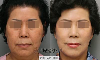 面部抗衰老整形对比案例