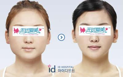 面部V-line整形手术对比案例图