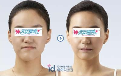 面部反颌整形手术对比案例图