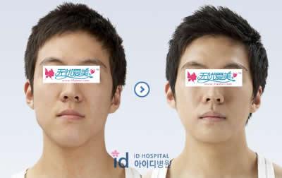 面部下颚整形手术对比案例图