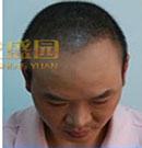 头发种植成功案例