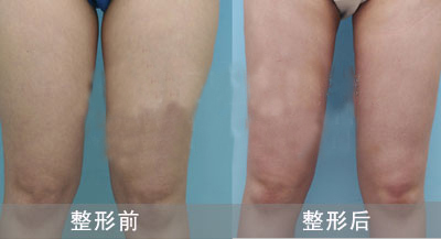 上海原辰整形大腿吸脂手术对比案例