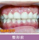 牙列稀疏美牙对比案例