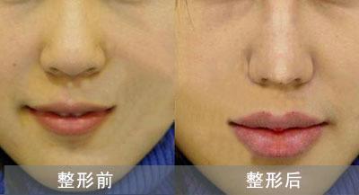 丰唇手术对比案例