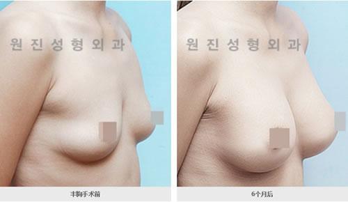 丰胸手术对比案例