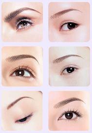 韩式双眼皮整形案例