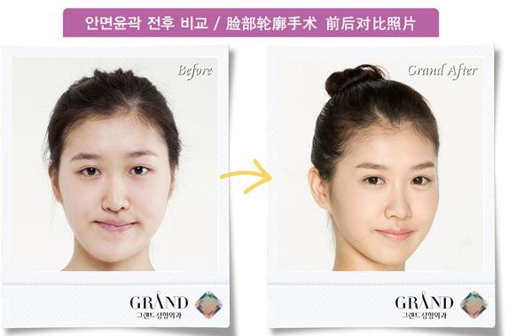 [高兰得整形外科]脸部轮廓手术 前后照片