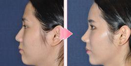 韩国4月31日整形外科鹰钩鼻矫正对比照片