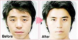 面部轮廓整形手术前后对比图