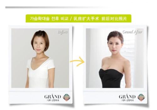 [高兰得整形外科]乳房扩大手术 前后照片