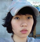 [高兰得整形外科]脸部轮廓手术 前后照片3