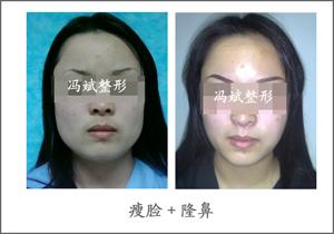 面部吸脂手术案例