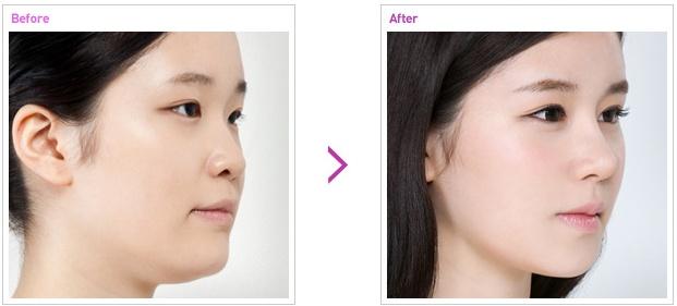 [高兰得整形外科]名品鼻子整形 前后照片