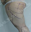大腿吸脂手术案例