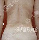 背部吸脂手术案例