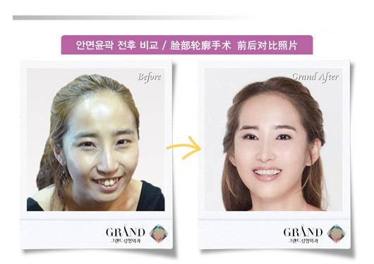 脸面轮廓整形前后照片