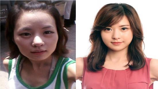 [高兰得整形外科]脸面轮廓手术 前后照片