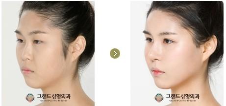鼻子整形前后照片对比图