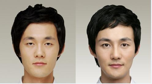 男性双眼皮、隆鼻整形前后对比照片