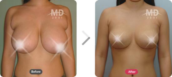 胸部整形手术前后案例对比照片