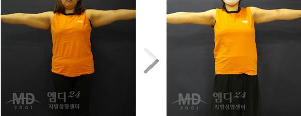 手臂吸脂整形术前后对比照片