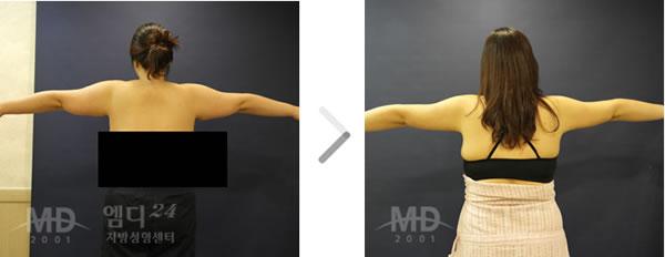 手臂吸脂整形前后对比照片