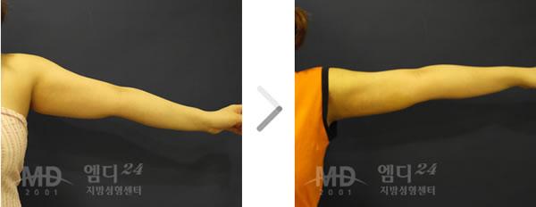 手臂吸脂术前后对比照片