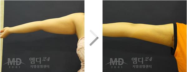 手臂吸脂手术前后对比照片