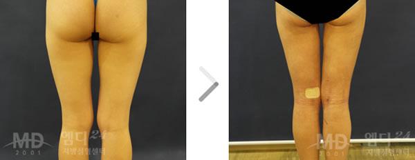 大腿臀部吸脂手术前后对比照片