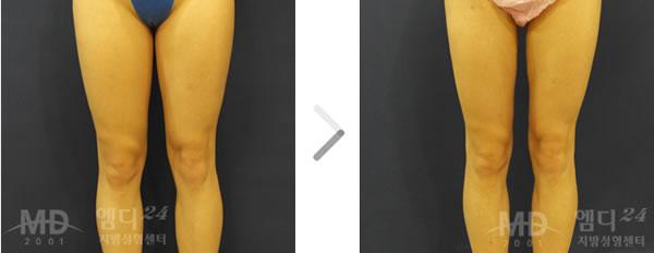 大腿吸脂整形前后对比照片