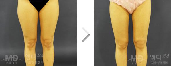 大腿外侧吸脂整形术前后对比照片