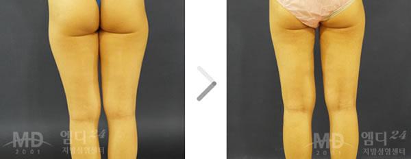 大腿吸脂手术前后对比照片