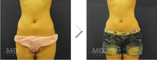 腰腹吸脂整形术前后对比照片